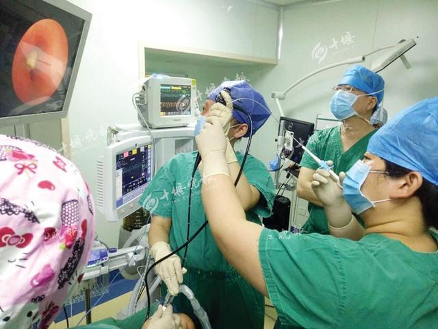 两岁男童咳嗽三月不见好转 原是花生米卡器官