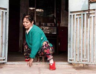女子50年在板凳上度过 渴望一台电动轮椅