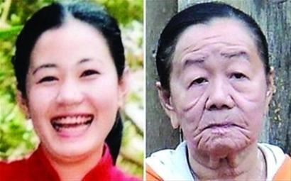 越南一女子过敏后患怪病 短时间衰老50岁(图)