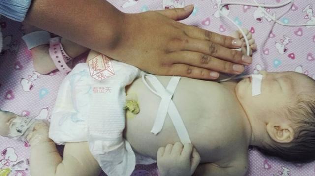 """新生女婴如同""""雪娃娃""""""""自动输血""""给了妈妈"""