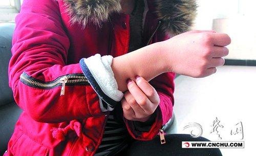 荆州一市民贴身穿绒毛卫衣过敏 专家称先穿内衣