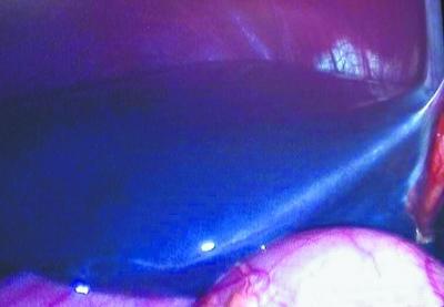 小伙肝脏都是蓝的还散发金属光泽 竟是因为这事