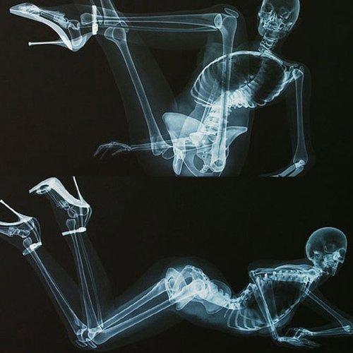 X光版骨感美女 全裸入镜三点不露 腾讯·大楚