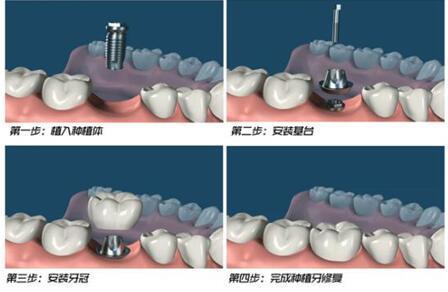 种植牙能用多长时间?德亚口腔种植牙终身使用