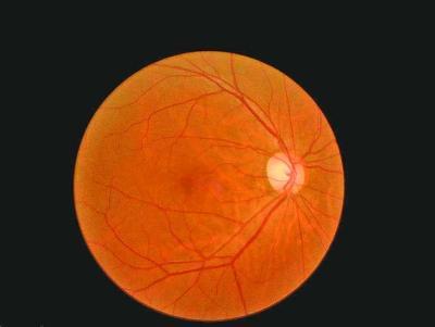 女白领眼角打针自体脂肪致右眼失明 眼科大夫告诫:丰太阳穴、隆眉弓等面部微整形存在失明危害