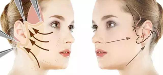 正面鼻子内部结构图