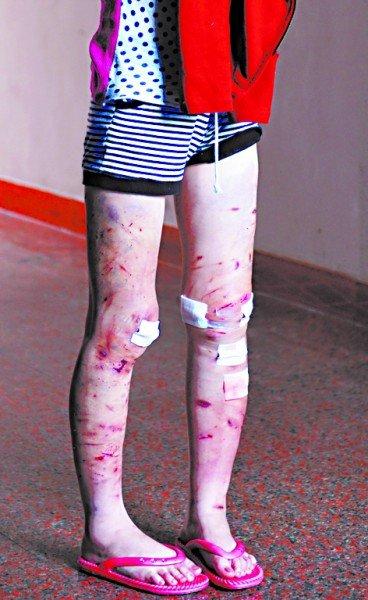 16岁男友遭女生割千刀少女a男友动漫图片图片