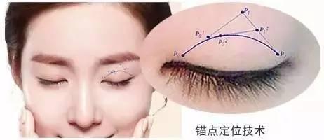而是依据眼部的解剖结构把缝合分化为加强力量的缝合,双眼皮固定缝合