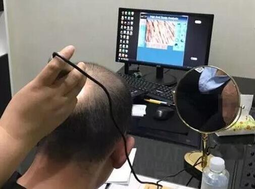 植发检测什么