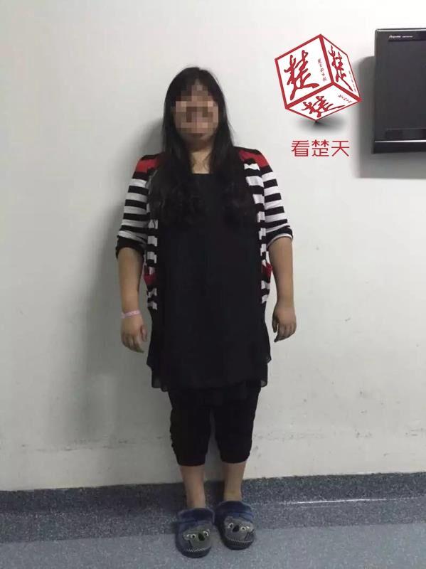 245斤女子难怀孕 手术减重狂甩近百斤后顺产男婴