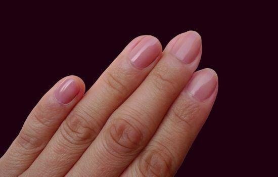 指甲状况暗示身体健康 疲劳过度指甲表面不光滑