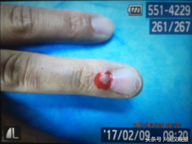 """手指一沾冷水就疼得像针扎 """"娇气""""女指痛13年竟是指甲下藏瘤"""