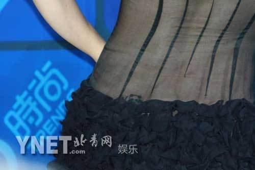 黄小蕾透视装亮相红毯秀纹身幼儿性感反复臀部怎么办又发烧后v纹身爆棚细菌性图片
