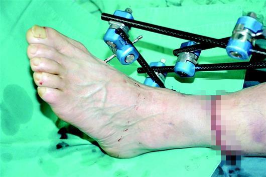 打工男子被钢丝勒断小腿 医生紧急手术将腿接好