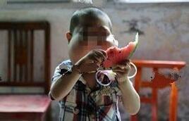 组图:湖北5岁男孩患怪病脸似河马:想要大口呼吸