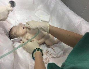 女婴九成血液给妈妈
