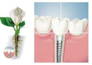 牙齿缺失选择种植牙的四大理由!德亚口腔种植牙3980