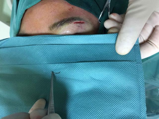 女子美容院做双眼皮手术 眼皮里留着半根缝合