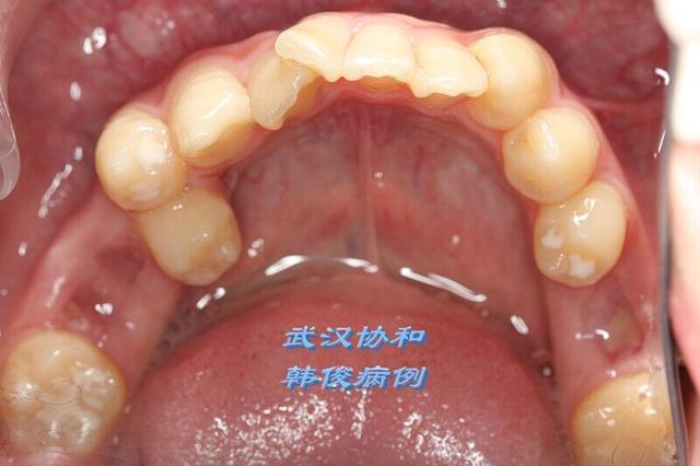 真牙总比假牙好——挪用智齿免镶牙