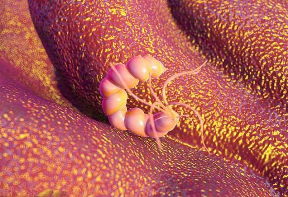 有了幽门螺杆菌,从胃溃疡到胃癌,可能只是一步之遥