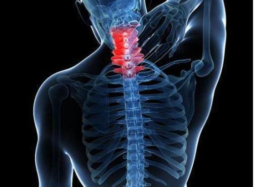 颈椎康复与中医护理  按摩与牵引的护理要点