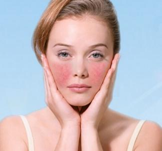 脸上化妆品过敏 引起激素性发红痒怎么办