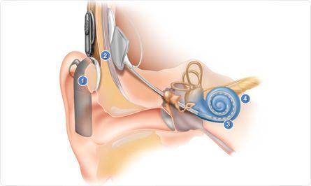 海药涉嫌人工耳蜗造假 破解样机是公开秘密