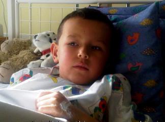 小儿包皮过长不必急着一刀切 观察后决定手术