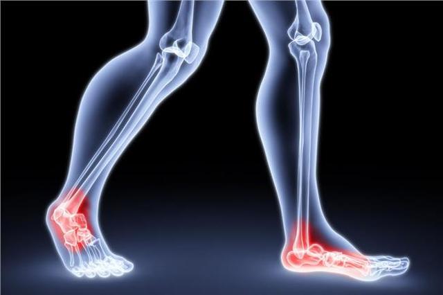 修复脚痛有妙招 少穿人字拖 趾甲别剪太短