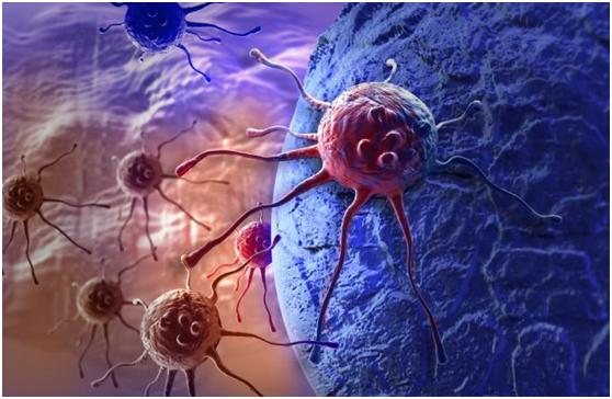 根除幽门螺杆菌,更容易引发胃癌?