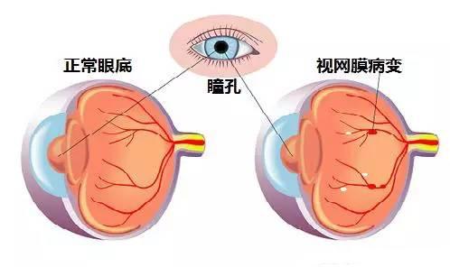糖尿病视网膜病变需要高度的警惕和防止