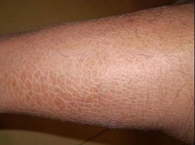 如何治疗鱼鳞皮肤 让专家给你来支招!