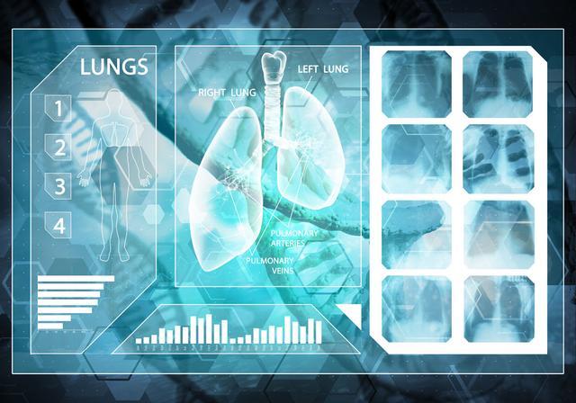 声音嘶哑是肺癌晚期表现吗 肺癌症状有?