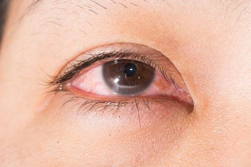 壹到换季眼睛善各种不快?眼科专家教养你迷信养护眼
