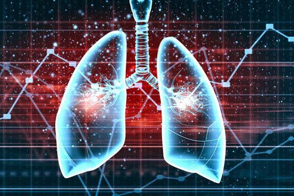 肺癌是男人的专利?错!40%的患者是女性
