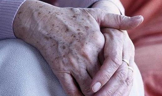 你可能还不知道 这种斑其实是皮肤癌!