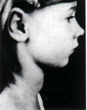 烟台3岁幼童患甲状腺癌 家族性遗传须警惕