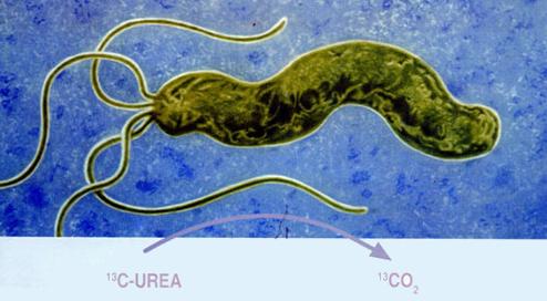 幽门螺杆菌根除失败?可能是忽略了这个重点