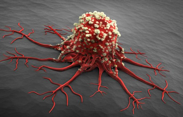 癌症发病率上升 人体啥器官最易得癌