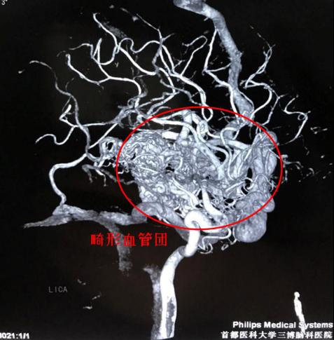 """头痛欲裂以为低头20年惹的祸,原来脑袋里有个乱如麻""""血管团"""""""