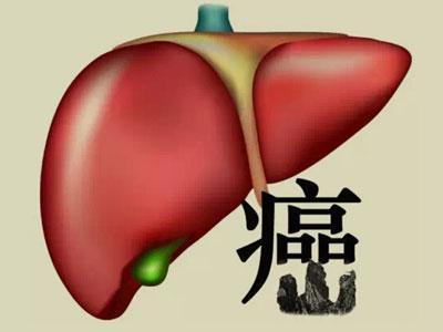 肝癌影像学检查|肝癌需要做哪些检查