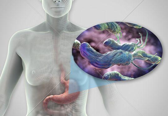 将幽门螺杆菌杀死在口腔,你的胃会安全很多!