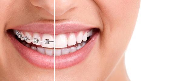 牙齿矫正这十个误区,你到底中了几条?
