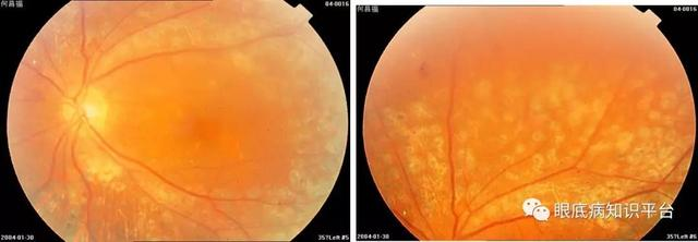 糖尿病性视网膜病变激光治疗还是不可替代的吗?