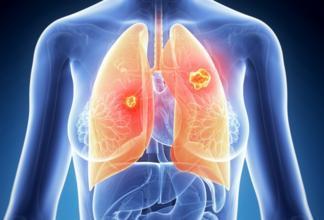新技术:晚期非小细胞肺癌治疗有新武器