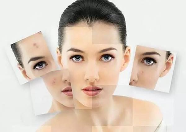 女人产后怎么祛斑?推荐六个方法帮你美容