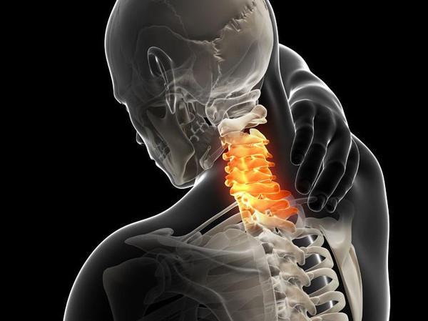 颈椎病不可盲目做CT 颈椎病的影像学检查图片