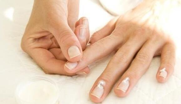 灰指甲前期征兆以及治疗方法
