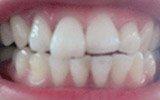 """口腔健康影响全身健康 爱牙注意""""八条"""""""