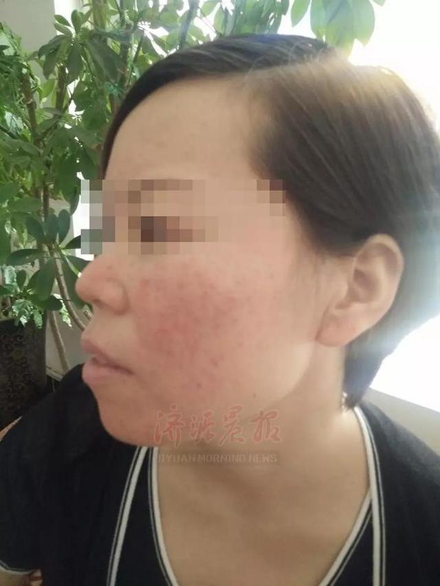 济源女子花13万元买护肤品 整张脸却差点毁容